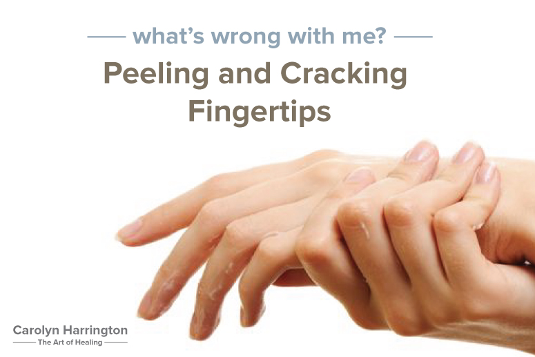 how to get rid of peeling skin on hands fast